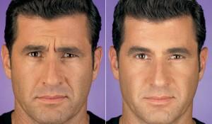 Botokslu erkekler daha genç görünüyor