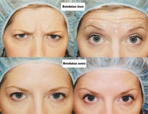 Mimiklerinizi değiştiremiyorsanız botoks ideal çözüm olabilir