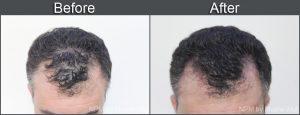 saç simülasyonu fiyatları- saç dövmesi- saç simülasyonu- saç simülasyonu fiyatları- pigmentasyon ombre- saç pigmentasyonu yaptıranlar- saç pigmentasyonu fiyatları- saç pigment boya- saç pigmentasyonu ekşi- saç simülasyonu istanbul- saç simülasyonu cihazı- saç dövmesi forum- ankara saç simülasyonu- saç dövmesi ankara- saç dövmesi nasıl yapılır- saç simülasyonu ankara fiyatları- saçta pigmentasyon nedir- saç pigmentasyonu yaptıranlar- saç pigmentasyonu fiyatları- saç pigmentasyonu nasıl yapılır- saç pigmentasyonu ekşi- saç dövmesi ekşi- saç dövmesi forum- saç dövmesi ankara- saç dövmesi nasıl yapılır- saç dövme fiyatları- kafaya saç dövmesi- saç dövmesi izmir- saç dövmesi nedir- saç derisine dövme- dovme sac ekimi- saç dövmesi ne kadar- saç dövmeyle kapama- saç kınasıyla dövme- saç şeklinde dövme- saç dövmesi gratis- saç dövmesi yaptırdım- saç dövmesi yapan yerler- saç boyasıyla dövme yapılırmı- saç dövmesi fatih serdaroğlu- saç boyasıyla dövme- saç dövmesi şikayet- saç derisi dövme- kalıcı saç dövmesi- saç simülasyonu istanbul- saç simülasyonu antalya- saç simülasyonu adana- saç simülasyonu ne kadar- sac simülasyonu nasil yapilir- saç simülasyonu bursa- 3d saç simülasyonu- saç simülasyonu caiz mi- saç simülasyonu video- 3 numara saç simülasyonu- saç simülasyonu şikayet- saç ekimi simülasyon- saç simülasyonu tanju çolak- saç simülasyonu serkan bozkurt- saç simülasyonu cihazı- saç rengi simülasyonu- saç ekim simülasyonu- saç boyama simülasyonu- saç modeli simülasyonu- saç simülasyonu ücreti- saç simülasyonu eğitimi- saç simülasyonu makinesi- saç simülasyonu yapan yerler- saç simülasyonu mersin- saç simülasyonu konya- saç simülasyonu kayseri- saç simülasyonu uygulaması- saç simülasyonu gaziantep- saç simülasyonu samsun- saç simülasyonu ne demek- saç simülasyonu öncesi sonrası- sac simülasyonu kac para- saç simülasyonu günah mı- saç simülasyonu kadınlar kulübü- saç simülasyonu ankara fiyatları- saç simülasyonu bayan- saç simülasyon programı- saç simülasyonu kalıcı mı- sa