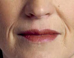 dudak çevresi kırışıklıkları suna dumankaya-dudak üstü kırışıklıkları kadınlar kulübü-ağız kenarı sarkması-burundan dudağa inen çizgiler-dudak gençleştirme-yanak çizgileri yok etme-dudak üstü kırışıklıkları-dudak üstü kırışıklıkları için egzersizler-dudak çevresi kırışıklıkları