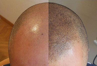 saç simülasyonu fiyatları- saç dövmesi- saç simülasyonu - saç simülasyonu fiyatları- pigmentasyon ombre- saç pigmentasyonu yaptıranlar- saç pigmentasyonu fiyatları- saç pigment boya- saç pigmentasyonu ekşi- saç simülasyonu istanbul- saç simülasyonu cihazı- saç dövmesi forum- ankara saç simülasyonu- saç dövmesi ankara- saç dövmesi nasıl yapılır- saç simülasyonu ankara fiyatları- saçta pigmentasyon nedir- saç pigmentasyonu yaptıranlar- saç pigmentasyonu fiyatları- saç pigmentasyonu nasıl yapılır- saç pigmentasyonu ekşi- saç dövmesi ekşi- saç dövmesi forum- saç dövmesi ankara- saç dövmesi nasıl yapılır- saç dövme fiyatları- kafaya saç dövmesi- saç dövmesi izmir- saç dövmesi nedir- saç derisine dövme- dovme sac ekimi- saç dövmesi ne kadar- saç dövmeyle kapama- saç kınasıyla dövme- saç şeklinde dövme- saç dövmesi gratis- saç dövmesi yaptırdım- saç dövmesi yapan yerler- saç boyasıyla dövme yapılırmı- saç dövmesi fatih serdaroğlu- saç boyasıyla dövme- saç dövmesi şikayet- saç derisi dövme- kalıcı saç dövmesi- saç simülasyonu istanbul- saç simülasyonu antalya- saç simülasyonu adana- saç simülasyonu ne kadar- sac simülasyonu nasil yapilir- saç simülasyonu bursa- 3d saç simülasyonu- saç simülasyonu caiz mi- saç simülasyonu video- 3 numara saç simülasyonu- saç simülasyonu şikayet- saç ekimi simülasyon- saç simülasyonu tanju çolak- saç simülasyonu serkan bozkurt- saç simülasyonu cihazı- saç rengi simülasyonu- saç ekim simülasyonu- saç boyama simülasyonu- saç modeli simülasyonu- saç simülasyonu ücreti- saç simülasyonu eğitimi- saç simülasyonu makinesi- saç simülasyonu yapan yerler- saç simülasyonu mersin- saç simülasyonu konya- saç simülasyonu kayseri- saç simülasyonu uygulaması- saç simülasyonu gaziantep- saç simülasyonu samsun- saç simülasyonu ne demek- saç simülasyonu öncesi sonrası- sac simülasyonu kac para- saç simülasyonu günah mı- saç simülasyonu kadınlar kulübü- saç simülasyonu ankara fiyatları- saç simülasyonu bayan- saç simülasyon programı- saç simülasyonu kalıcı mı- s